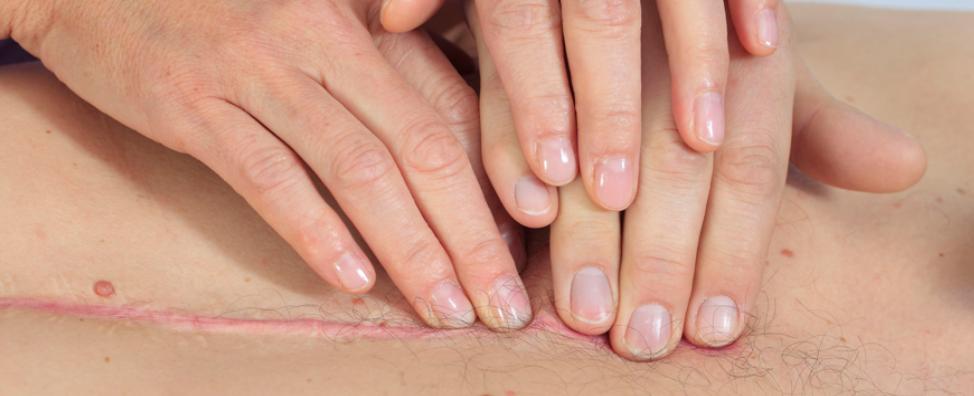 große Narben brauchen Narbenentstörung - Narbe am Brustkorb wird massiert