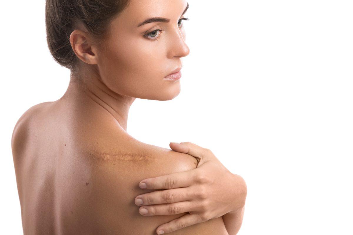Narbenentstörung steigert die Genesung - Frau massiert ihre Schulter